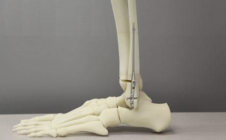 3D Printed Bone Models