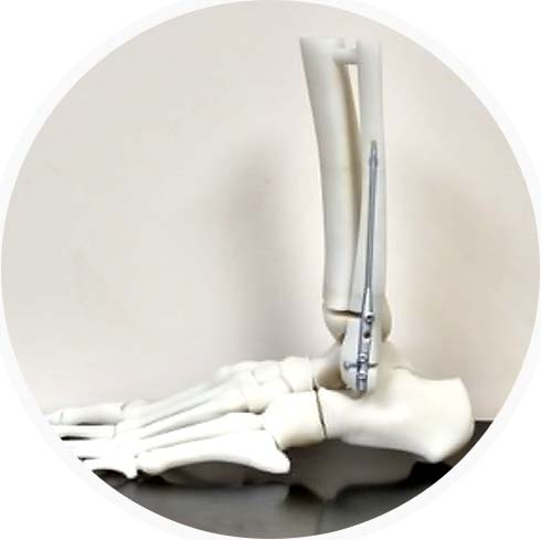 3D Printed Bone Models Provide True-To-Life Training For Surgeons